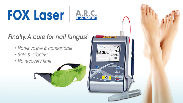 FOX Laser for Nail Fungus