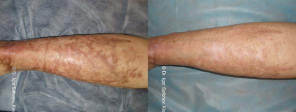 dermaroller-scar-1