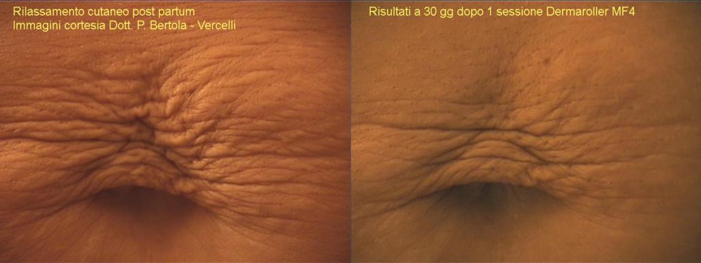 Dermaroller Micro Needling Dermaspark Products Inc