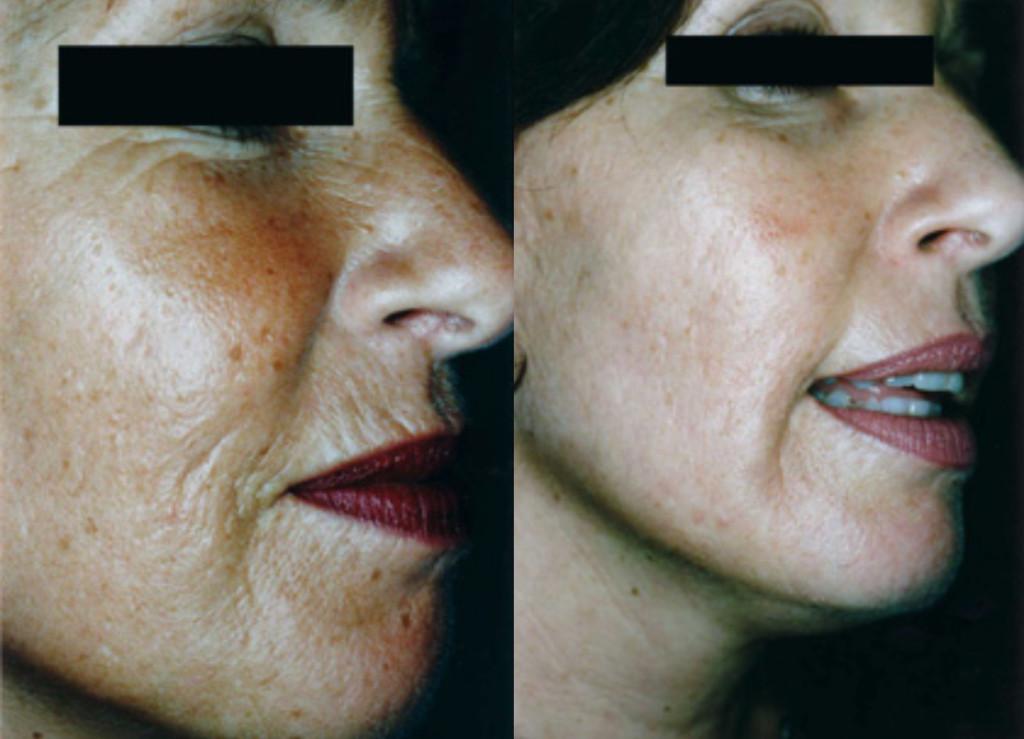 Image Result For Lip Skin